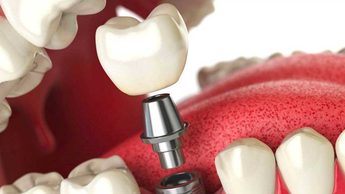 implantes-dentales-merida