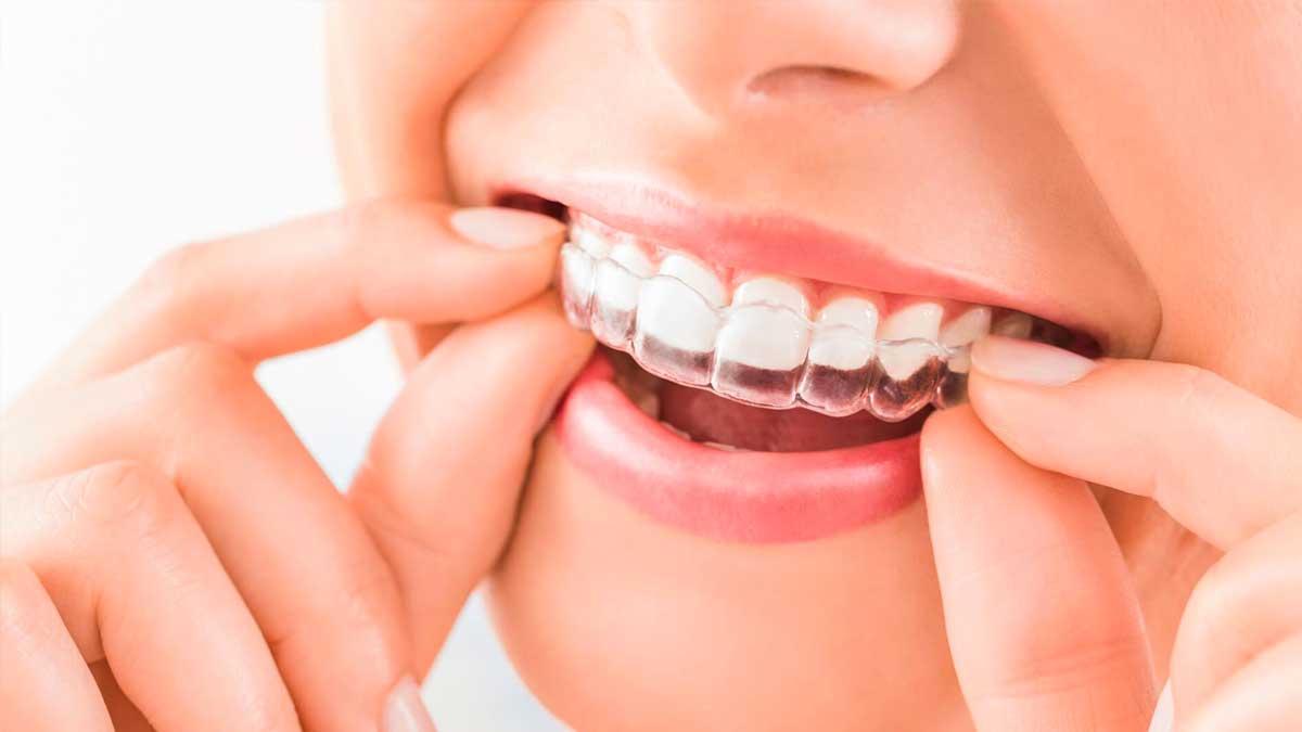ortodoncia-invisible-invisalign-merida