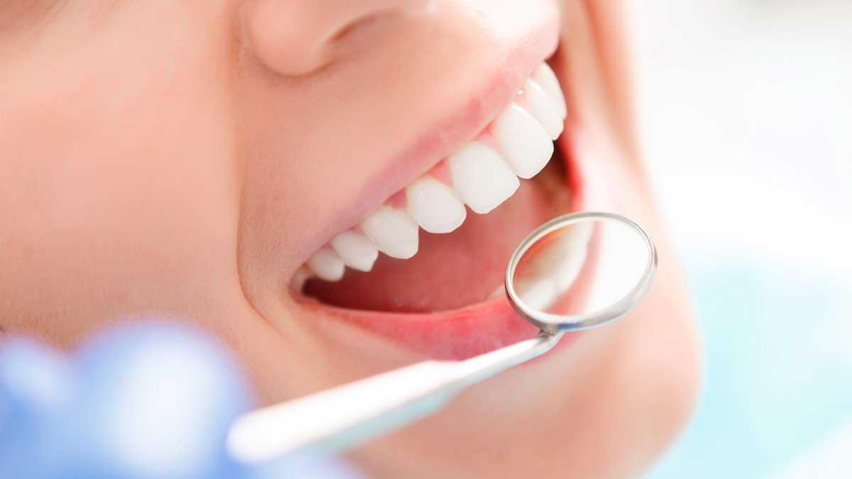 tratamiento-de-la-periodoncia-merida