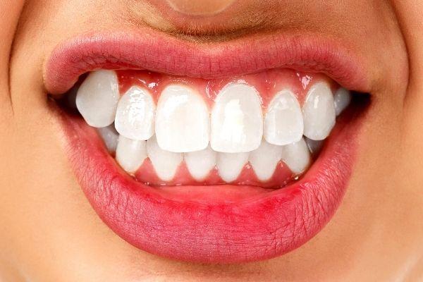 ¿Por qué rechinamos los dientes? Todo sobre el bruxismo